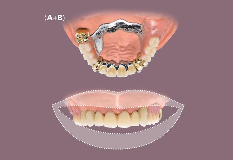 Ohne zahnprothese gaumenplatte oberkiefer Zahnprothesen: Arten,